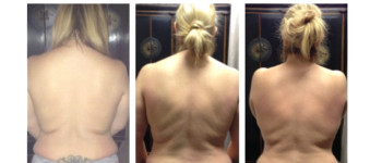 Body-fx-before-after-3
