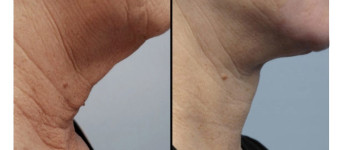 Forma-fx-before-after-1