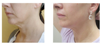 Forma-fx-before-after-4