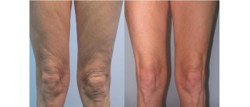 Forma-fx-before-after-5