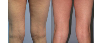 Forma-fx-before-after-6