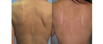 Forma-fx-before-after-8