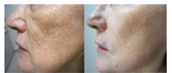 Fractora-fx-before-after-5