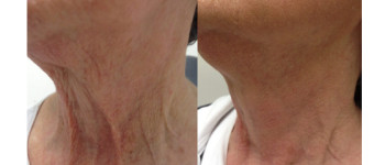 Fractora-fx-before-after-6
