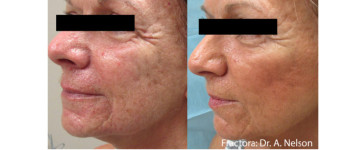 Fractora-fx-before-after-8